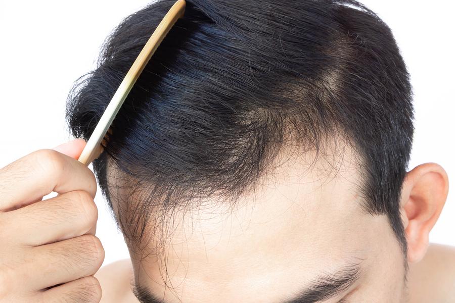 Zyklus des Haarwachstums - Wachsen und ausfallen