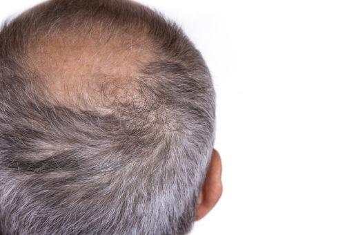 Haarausfall mit Wurzel behandeln