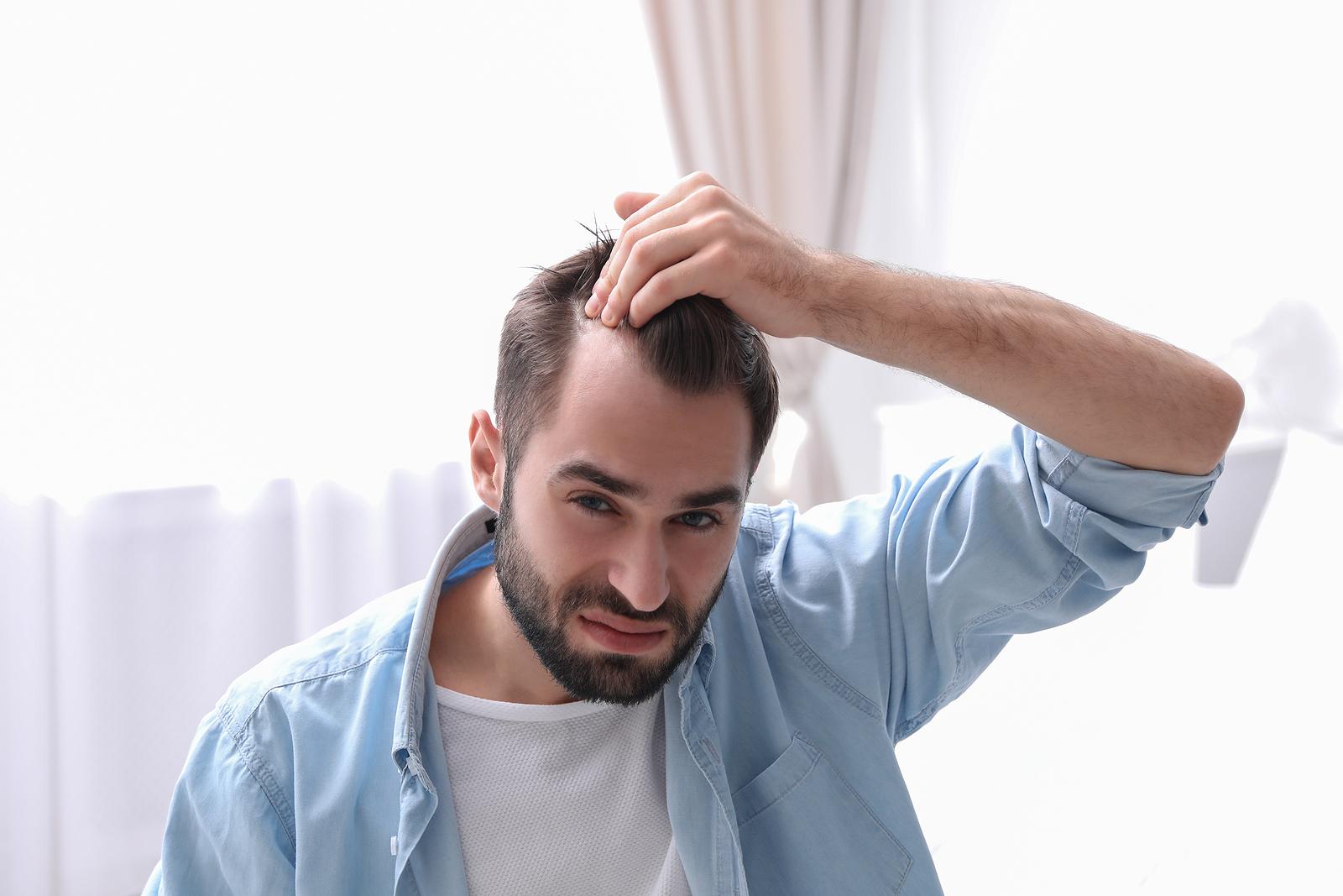 Haarausfall nach der Haartransplantation Was Sie wissen sollten