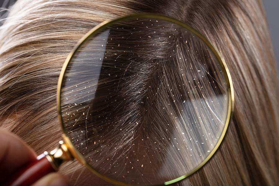 Haarausfall und trockene Kopfhaut richtig behandeln