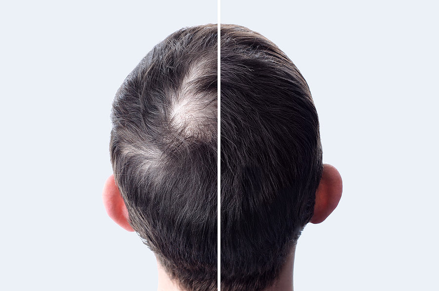 Mit Streuhaar den Haarausfall kaschieren