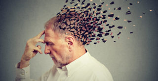 Fehlgeschlagene Haartransplantation