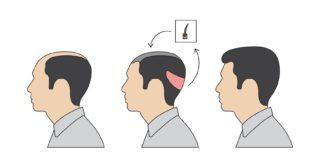 Spenderbereich nach der Haartransplantation