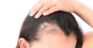 Haartransplantation bei dünnem haar